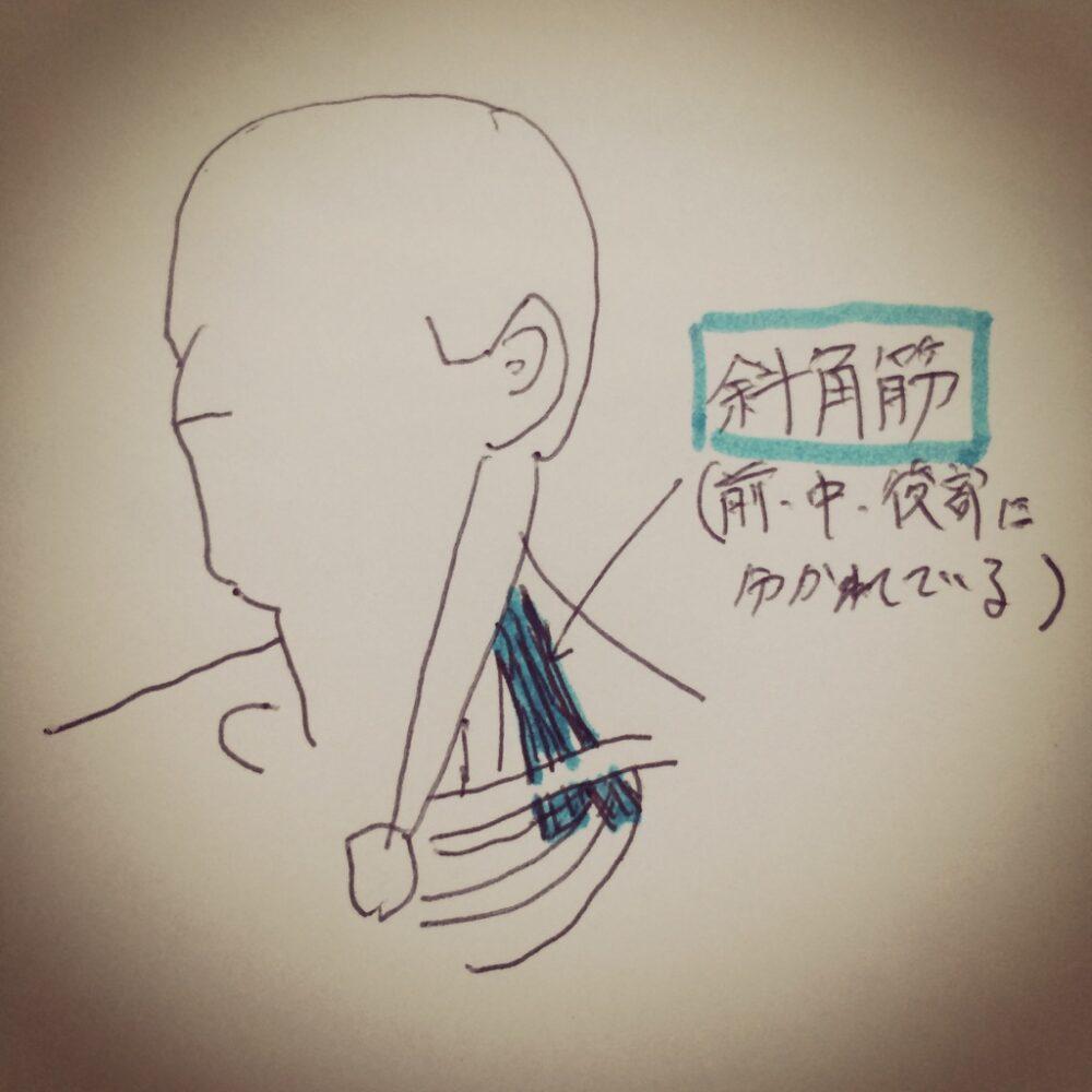 左胸の痛みの原因となる斜角筋